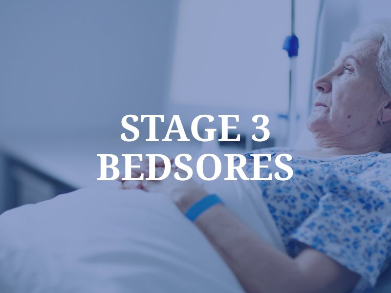 Stage 3 Bedsores